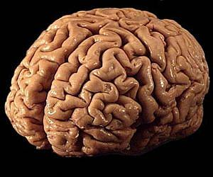 human-brain-pink-300-lg