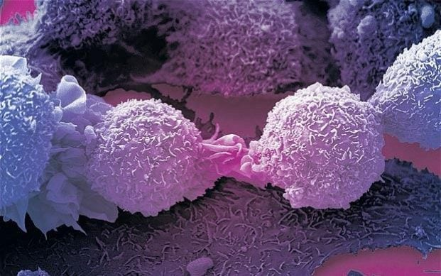 Jim Allison Breakthrough Cancer Cure Film, T-Cell, CTLA-4, Ipilimumab